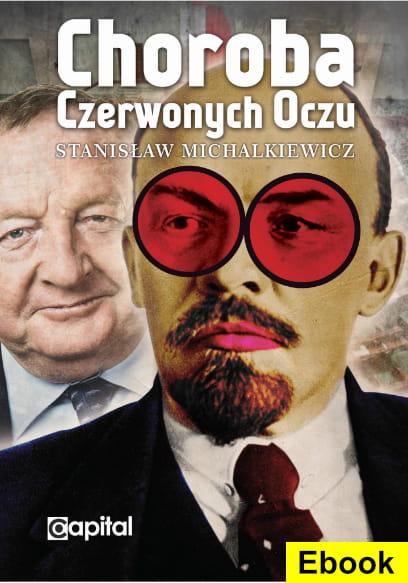 Image of (E-book) Choroba czerwonych oczu - Stanisław Michalkiewicz